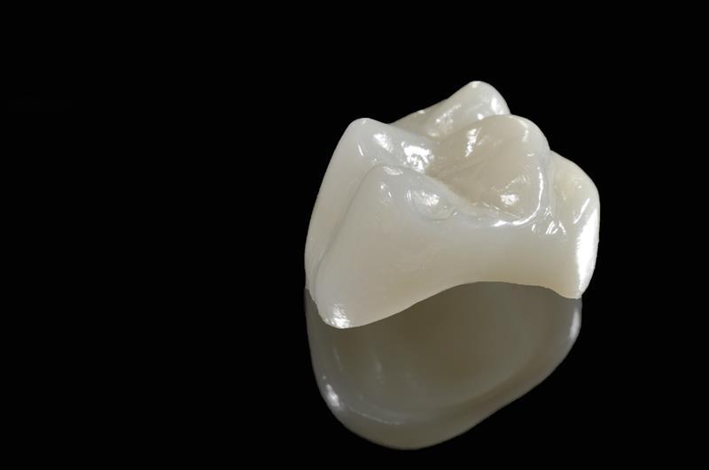 Porcelain Crowns  Wilmette, IL